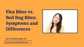Flea Bites vs. Bed Bug Bites: Symptoms and Differences   Doctors Health Press