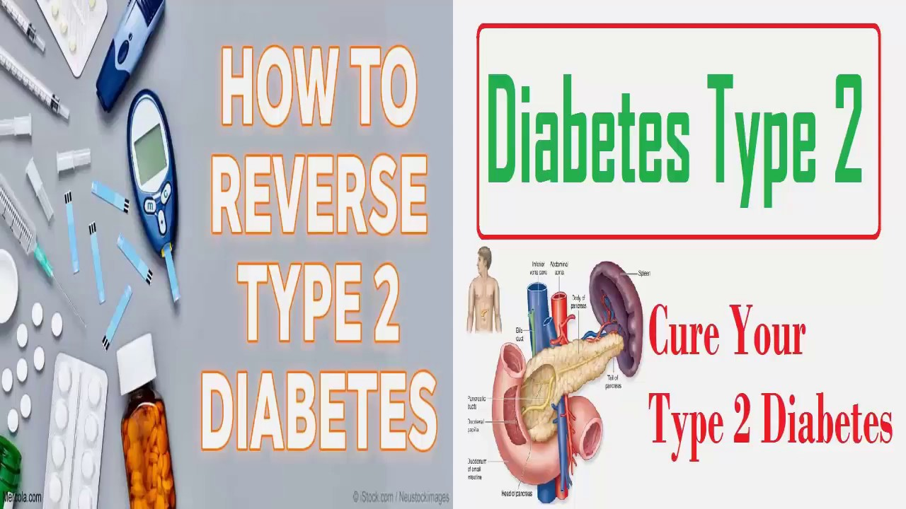 Diabetic T Chart Type 2 Diabetes Plan Sample Meal