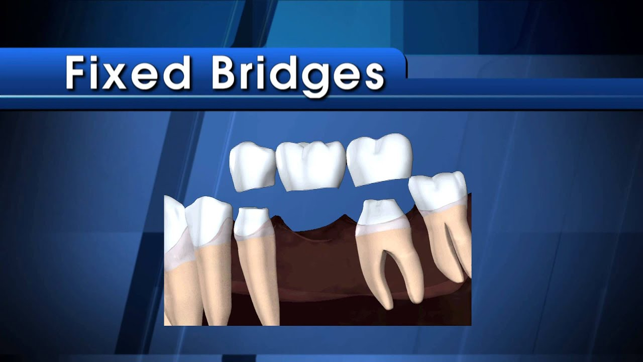 Dental Bridges Video