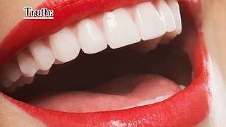 10 Common Myths About Dental Care