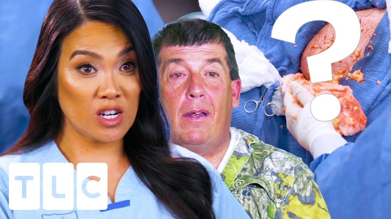 """Download """"This Thing Has Woken Up"""": The MESSIEST Extraction Of All Time 