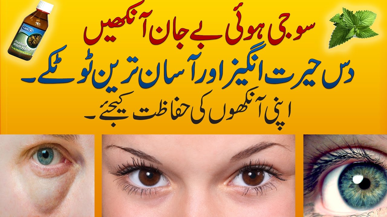 10 Best Home Remedies to Cure Puffy & Swollen Eyes will Make them Beautiful