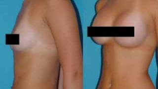Bal Harbour Plastic Surgeon on Breast Augmentation Thumbnail