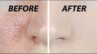 How to Get Rid Of Pimple/Acne Pits & Open Pores   Shrink Large Pores   100% Effective   JSuper Kaur