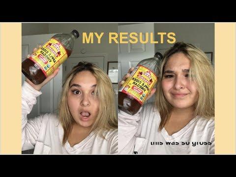 apple-cider-vinegar-for-a-week-(my-results)