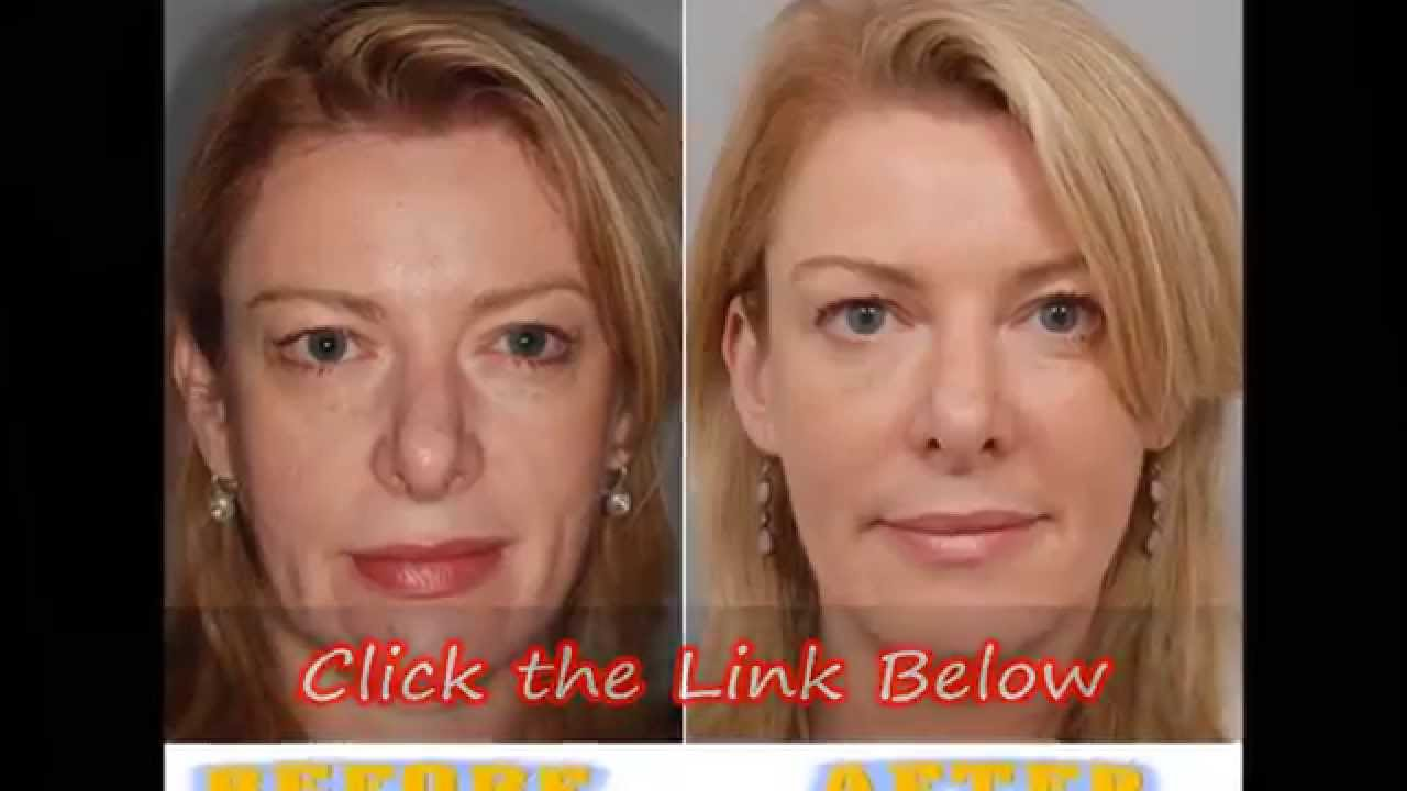 Watch How to Fake a Face Lift video