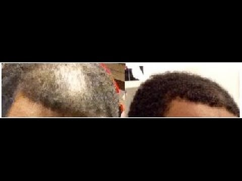Does Minoxidil Rogaine Really Work