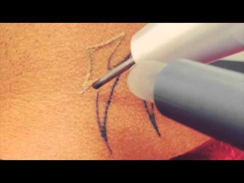 Life-Changing Laser Tattoo Removal of Hate Symbols