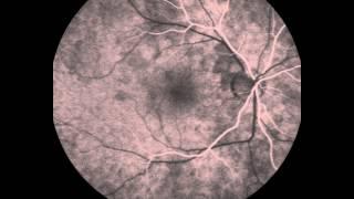 Angiografía retinal Spectralis