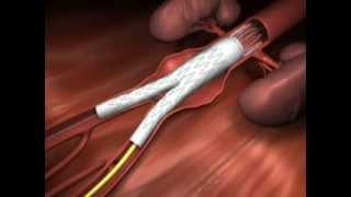 Open Aortic Aneurysm Repair Houston Methodist DeBakey Heart & Vascular Center, presents a cardiova.