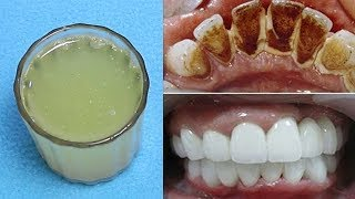 Download How To Whiten Teeth In 3 Minutes At Home Video Sosoclip Com