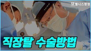 [방송] 직장탈수술방법