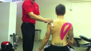 Taping - Supraspinatus facilitation Elastic therapeutic tape