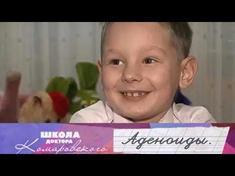 Аденоиды - Школа доктора Комаровского
