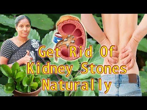 pathri ka ilaj / Kidney Stone Removal Naturally Pathri ka Poudha or Bryophyllum Pinnatum