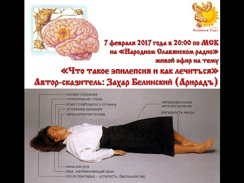 Эпилепсия (Падучая болезнь) - MEDSIDE