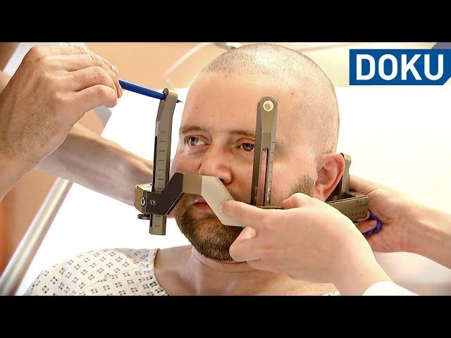 Parkinson mit 41 – Letzter Ausweg OP   hessenreporter