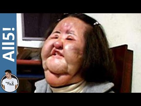 5 Of The Worst Plastic Surgery Disasters!