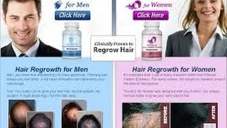 Provillus Hair Loss Treatment For Men and Women Look Younger Today