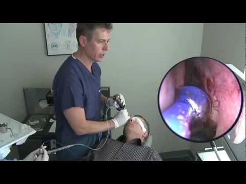 Balloon sinuplasty procedure in office under local anesthesia youtube - Procedure hospitalisation d office ...