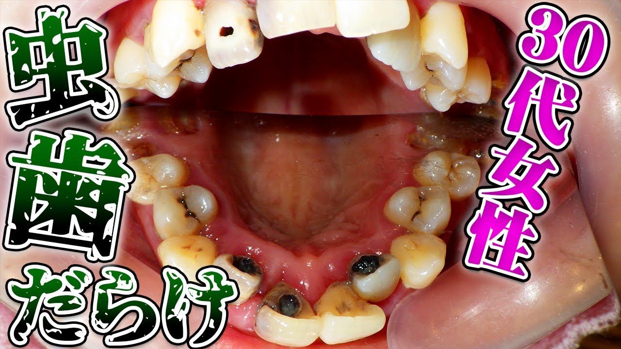30代女性の大量虫歯🦷歯科治療恐怖症の為、眠った状態で治療!2時間でここまでやれるの??【Tooth Decay 1day treatment twenties woman】【重度蛀牙治療】