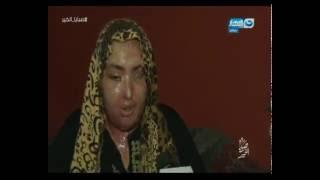 صبايا الخير | ريهام سعيد تتبنى حالة علاج فاطمة بعد محاولة زوجها لتشويه وجهها بمياه النار..