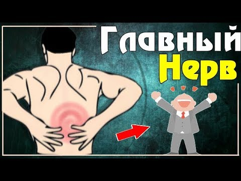 Радикулит - причины, симптомы, диагностика и лечение