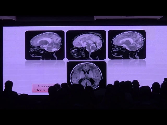 "¿Cómo esclarecer la ventriculomegalia ""aislada""? Laurent Guibaud"