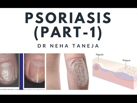Papulosquamous disorders and Psoriasis(Part-1)