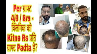 Real Cost of Hair Transplant Rs 4, 6, 8 Per Graft? || Rest is Profit & Commission in Hair Transplant