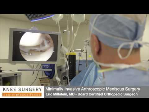 Arthroscopic Knee Surgery | Meniscus Surgery Performed by Dr. Millstein