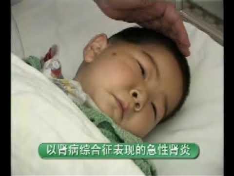 卫生部医学视听教材—儿科—EK004 急性肾小球肾炎