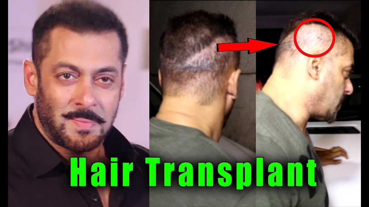 Bollywood 10 Actors Who Underwent For Hair Transplant Surgery Youtube
