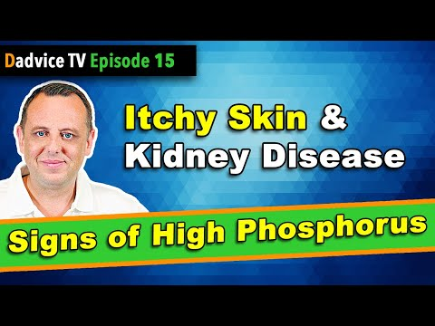 itchy-skin-&-chronic-kidney-disease---a-sign-of-low-kidney-function-&-high-phosphorus