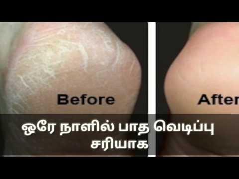 ஒரே நாளில் பாத வெடிப்பு  சரியாக(how To Get Rid Of Foot Crack In Tamil/ Foot Crack Remedy InTamil.