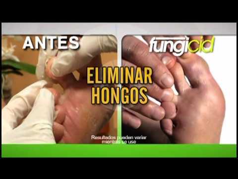 El tratamiento de la uña arrancada en la mano