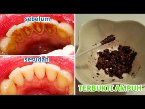 Dr Oz Indonesia-Dampak dari Karang Gigi   Cara Membersihkan 642c0d981a