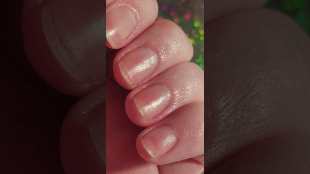 Allergy to jojoba oil update - YouTube