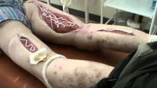 Последствия употребления дезоморфина (електроширки)