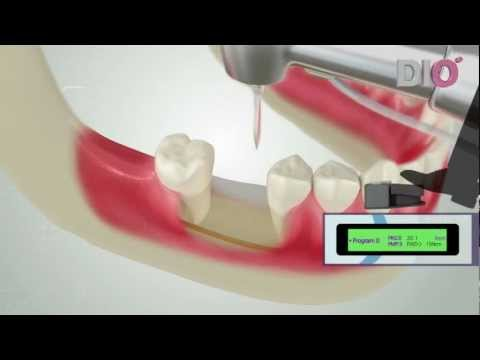 Dio Implant Dental Implant Education Video for Dentist