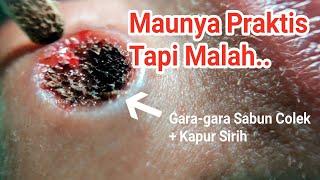 Tahi Lalat Ditumbuhi Rambut, Amankah Diambil? | On The Spot Laser CO2 & Ulasannya dr. Irfan Prasetya.