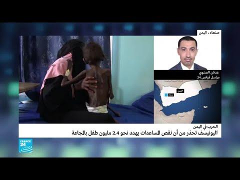 اليونيسف: نقص المساعدات يهدد نحو 2.4 مليون طفل يمني بالمجاعة