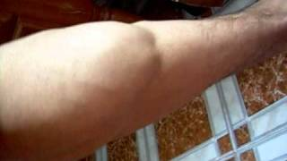 muscle,mollets.MOV