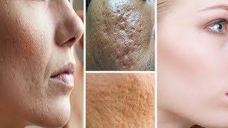 Du brauchst nur eine Zutat, um große Poren in deinem Gesicht zuhause zu verkleinern