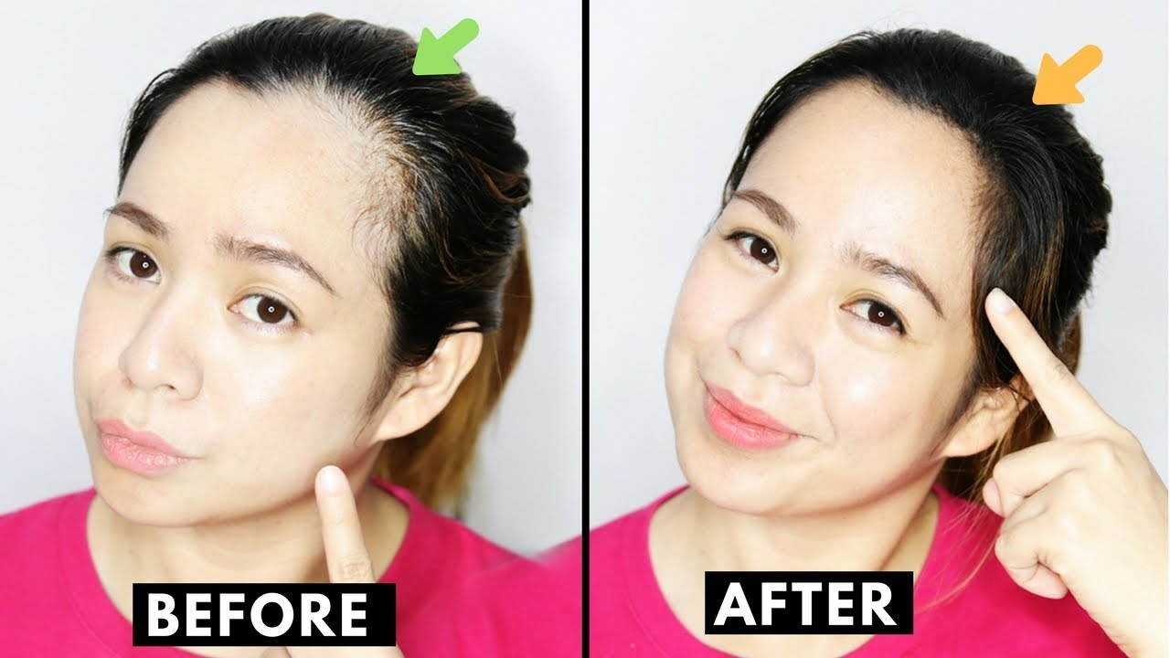 How To Naturally Grow Back Thinning Hairline Cover Up Receding Hairline Beautyklove Youtube