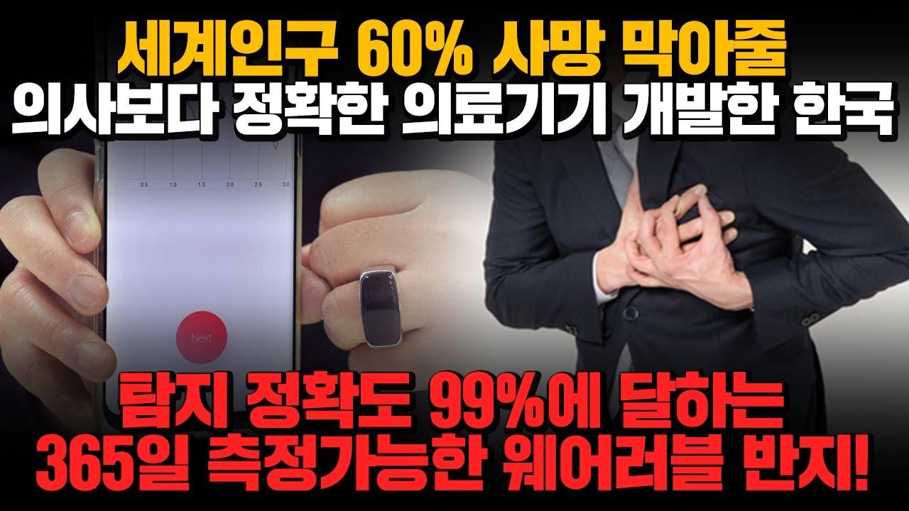 [경제] 세계인구 60% 사망 막아줄 의사보다 정확한 의료기기 개발한 한국! 탐지 정확도 99%에 달하는 365일 측정가능한 웨어러블 반지!