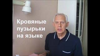 Кровяные пузырьки на языке Alexander Zakurdaev