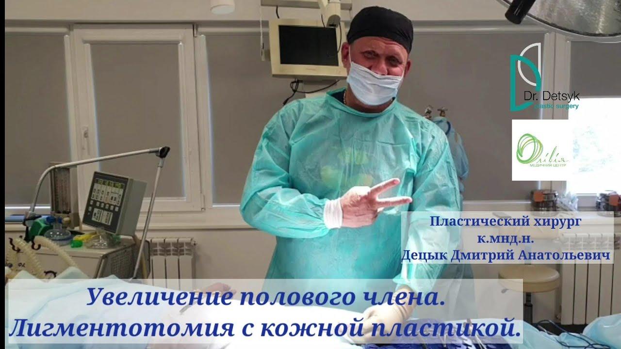 увеличение члена лигаментотомия
