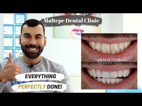 Dental Veneers Treatment in Turkey | Maltepe Dental Clinic, Istanbul