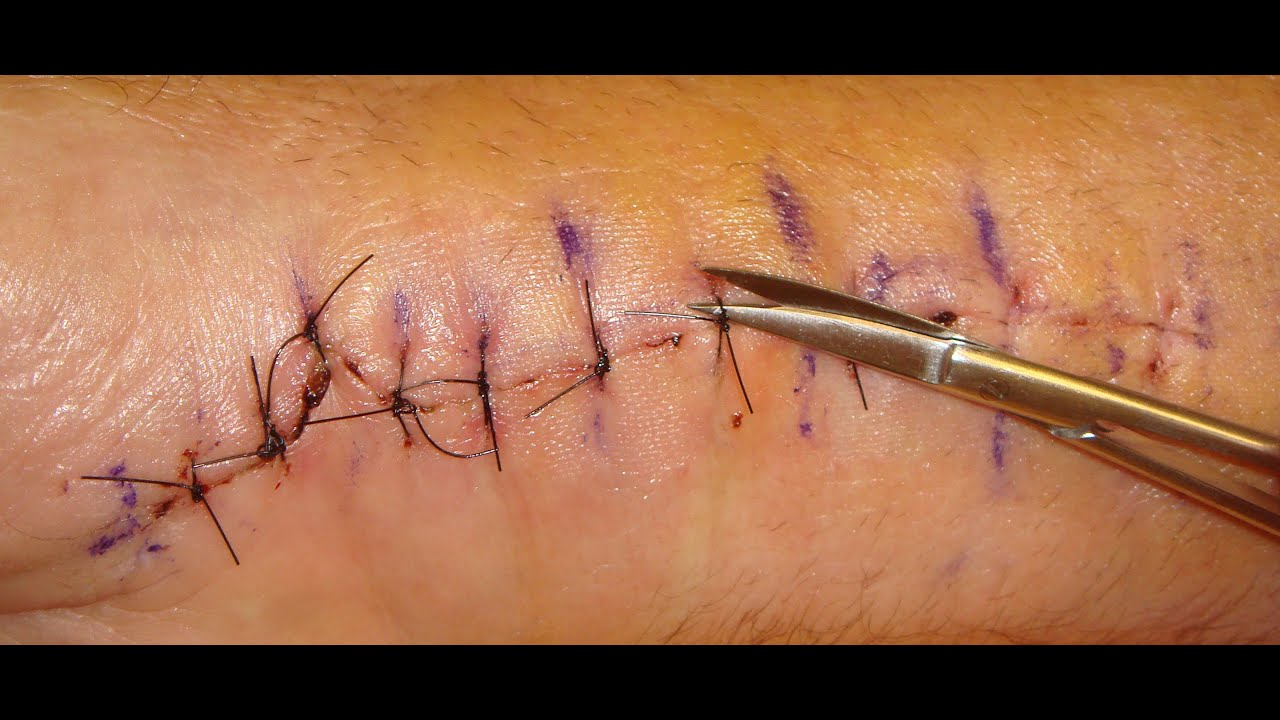 How to remove stitches 8